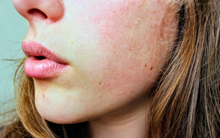 8 Recommended Skin Care Products For Sensitive And Acne-Prone Skin